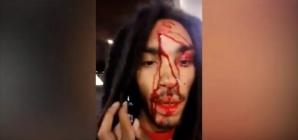 Rapper gets shot in the head and posts video to Facebook. Totally Crazy