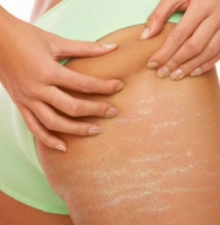 How to make Aloe Vera for stretch marks and acne scars